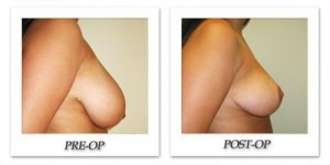 phoca_thumb_l_cohen-breast-reduction-006