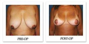 phoca_thumb_l_cohen-breast-reduction-007