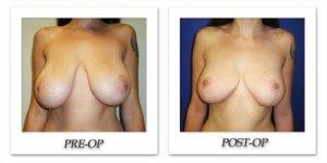 phoca_thumb_l_cohen-breast-reduction-008