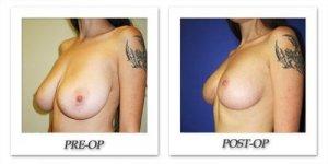 phoca_thumb_l_cohen-breast-reduction-009