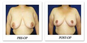 phoca_thumb_l_cohen-breast-reduction-010