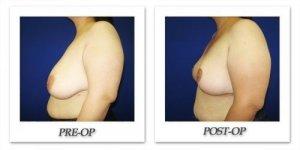 phoca_thumb_l_cohen-breast-reduction-011