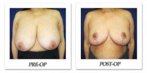 phoca_thumb_l_cohen-breast-reduction-012