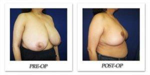 phoca_thumb_l_cohen-breast-reduction-013