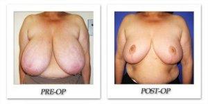 phoca_thumb_l_cohen-breast-reduction-014