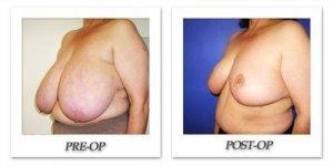 phoca_thumb_l_cohen-breast-reduction-015