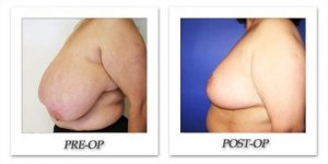 phoca_thumb_l_cohen-breast-reduction-016