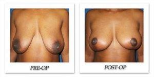 phoca_thumb_l_cohen-breast-reduction-017