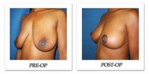phoca_thumb_l_cohen-breast-reduction-018