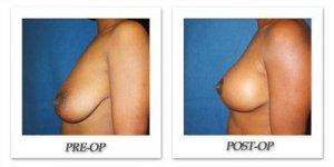 phoca_thumb_l_cohen-breast-reduction-019
