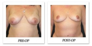 phoca_thumb_l_mandris-breast-reduction-001