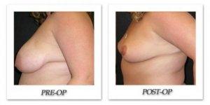 phoca_thumb_l_mandris-breast-reduction-002
