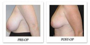 phoca_thumb_l_mandris-breast-reduction-004