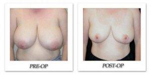phoca_thumb_l_mandris-breast-reduction-005