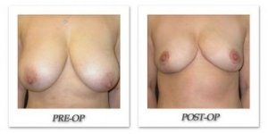 phoca_thumb_l_mandris-breast-reduction-006