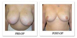 phoca_thumb_l_mandris-breast-reduction-007