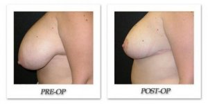 phoca_thumb_l_mandris-breast-reduction-008