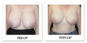 phoca_thumb_l_phoca_thumb_l_mandris-breast-reduction-003b