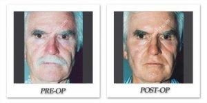 phoca_thumb_l_Patient8-front