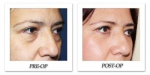 phoca_thumb_l_eyelid-surgery-before-after-Side-001