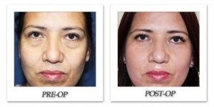 phoca_thumb_l_eyelid-surgery-before-after-front-001