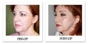 phoca_thumb_l_dr-begovic-facelift-before-after-002
