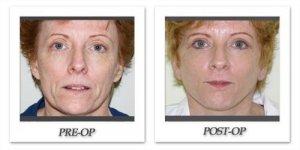 phoca_thumb_l_facelift-patient3