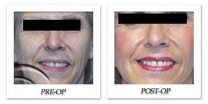phoca_thumb_l_hodnett-face-lift-001