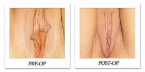phoca_thumb_l_cohen-female-corrective-001