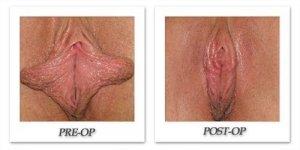 phoca_thumb_l_danesh-female-corrective-04