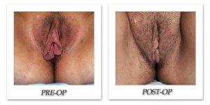 phoca_thumb_l_female-corrective-15