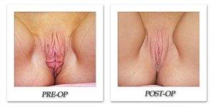 phoca_thumb_l_female-corrective-16