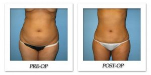 phoca_thumb_l_bruno-liposuction-001