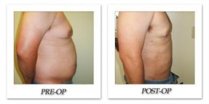 phoca_thumb_l_cohen-liposuction-002