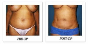 phoca_thumb_l_cohen-liposuction-003