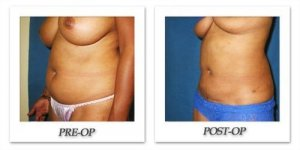phoca_thumb_l_cohen-liposuction-004