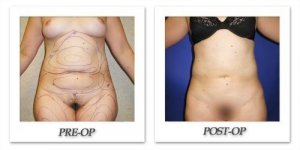 phoca_thumb_l_cohen-liposuction-005