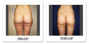 phoca_thumb_l_cohen-liposuction-007