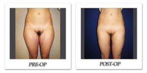 phoca_thumb_l_cohen-liposuction-008