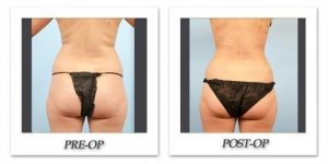 phoca_thumb_l_dr-begovic-liposuction-before-after-001