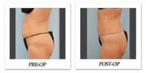 phoca_thumb_l_dr-begovic-liposuction-before-after-002