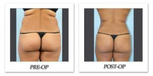 phoca_thumb_l_dr-begovic-liposuction-before-after-003