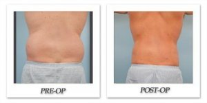 phoca_thumb_l_dr-begovic-liposuction-before-after-004