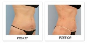 phoca_thumb_l_dr-begovic-liposuction-before-after-005