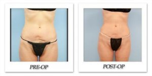 phoca_thumb_l_dr-begovic-liposuction-before-after-007