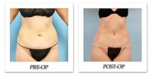 phoca_thumb_l_dr-begovic-liposuction-before-after-008
