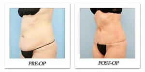 phoca_thumb_l_dr-begovic-liposuction-before-after-009