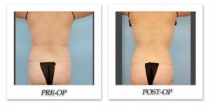 phoca_thumb_l_dr-begovic-liposuction-before-after-012