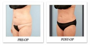 phoca_thumb_l_dr-begovic-liposuction-before-after-013