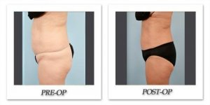 phoca_thumb_l_dr-begovic-liposuction-before-after-014